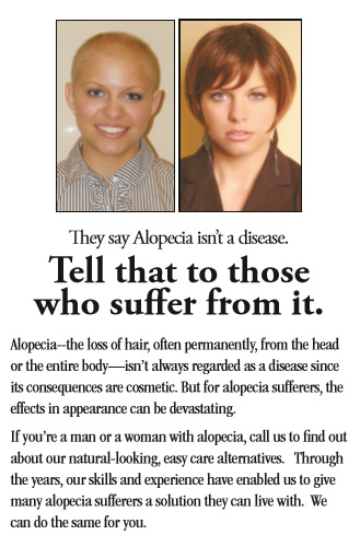 alopecia palm beach