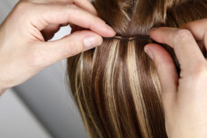 hair loss north palm beach